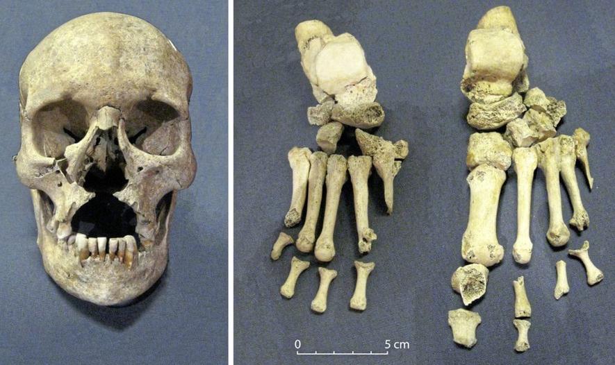 Skelettdelar från en kyrkogård i Dublin. Foto: Queen's University Belfast